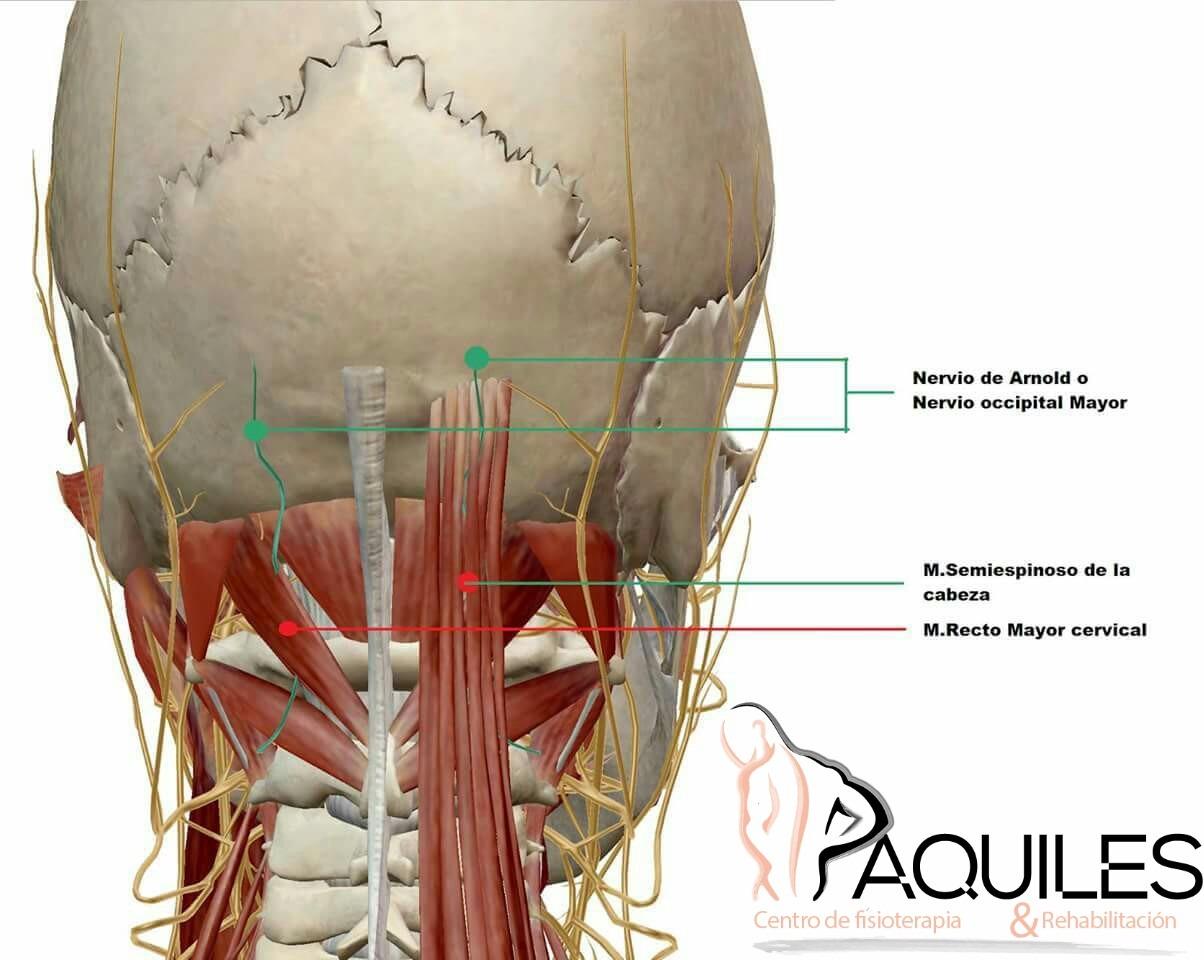 NEURALGIA DE ARNOLD | Aquiles